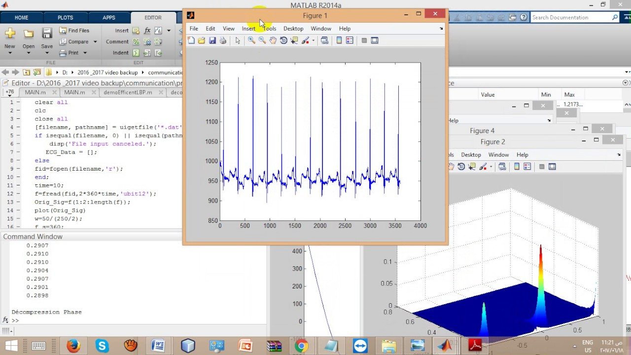 Performance Analysis of ECG Signal Compression using SPIHT|ieee 2017 signal  processing projects