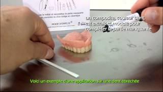 Dentaplein - un kit de réparation pour dent cassée, bridge couronne réparation
