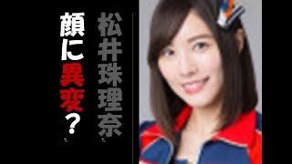https://youtu.be/GBVNN5S3jKs松井珠理奈 MステでのTV復帰の際視聴者が...