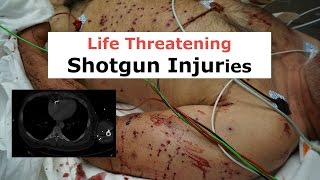 Life Threatening Shotgun Injuries