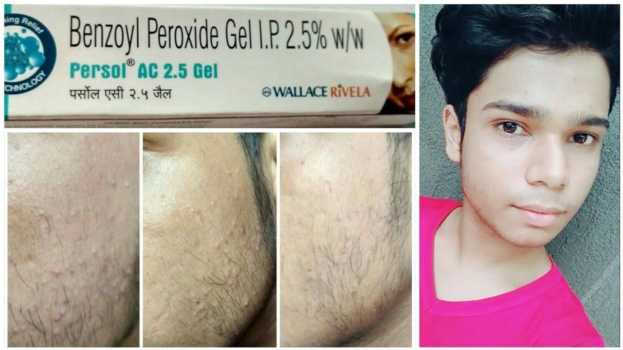 bensoylperoxid acne
