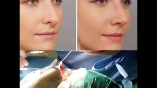 👃🏻👃🏻👃🏻smart rhinoplasty globose tip treatments   Www.drurtisclinic.com
