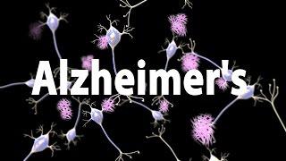 Alzheimer's Disease (AD), Pathology and Genetics, Animation.