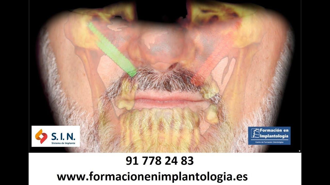 Excepcional Implantes Cigomáticos El Enfoque Anatomía Guiada ...
