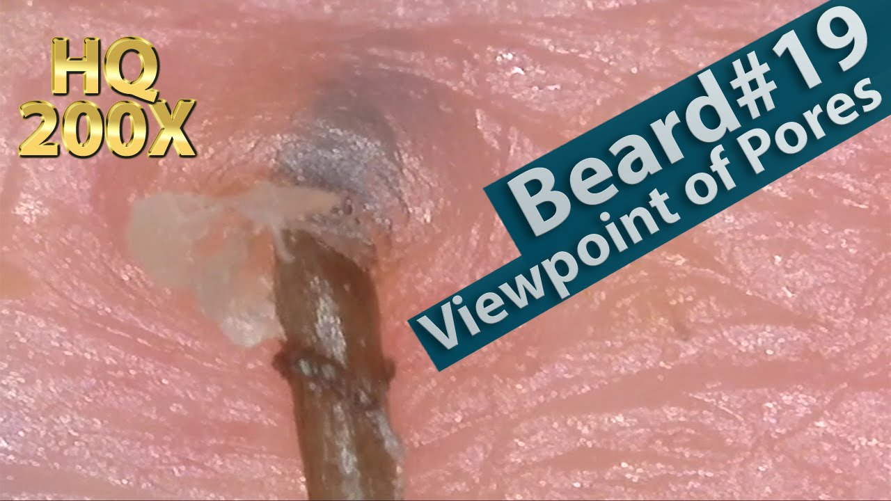 19 Pull Out Beard Viewpoint Of Pores Blackhead And Hair Root Sheath Close Up You