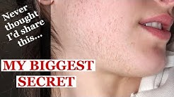 MY BIGGEST SECRET EXPOSED | Laser hair removal journey 2018