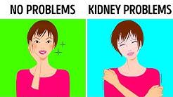hqdefault - Survival Rate 25 Kidney Function