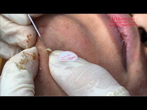 Acne treatment in Ha Quyen Spa on 16/07/2019 Part 1 - Điều trị mụn tại Hà Quyên Spa