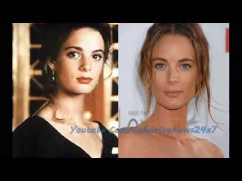 Gabrielle Anwar Plastic Surgery Before and After HD