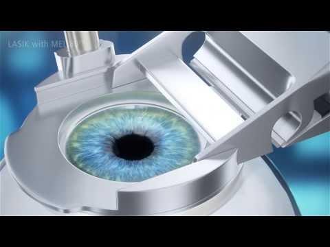 ผ่าตัดแก้ไขสายตาผิดปกติด้วยเลเซอร์ : เลสิก (LASIK)