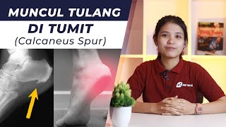 http://www.explainthepian.com Dr. Matthew Neuhaus discusses tarsal tunnel syndrome which is much lik.