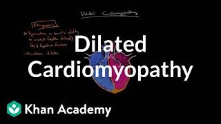 Dilated cardiomyopathy: Pathophysiology and diagnosis | NCLEX-RN | Khan Academy