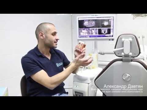 Лечение кисты яичника народными средствами, без операции