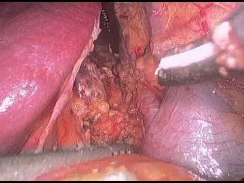 Kidney Transplant Donor Surgery:  Laparoscopic Live Donor Nephrectomy