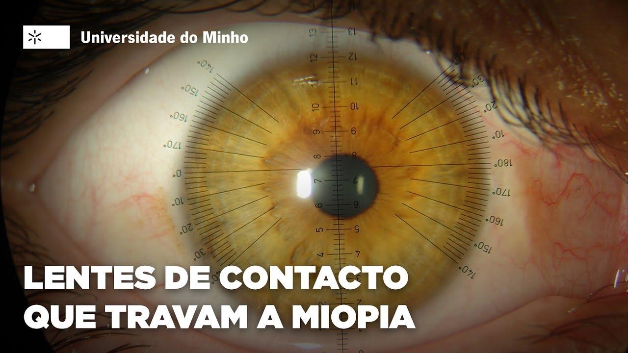 01b4a3c54 Lentes de contacto que travam a miopia das crianças - YouTube