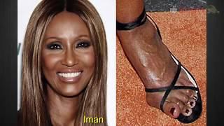 Самые ужасные ноги знаменитостей - celebrities with ugly feet
