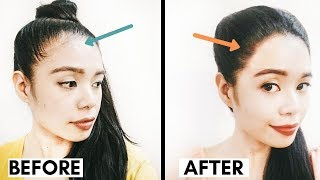 Methods I'm Using to Grow Back a Fuller Hairline- Receding Hairline Regrowth- Beautyklove