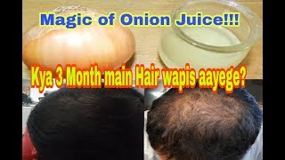 How to Make Onion Oil to Regrow Hair || Best Hair Oil