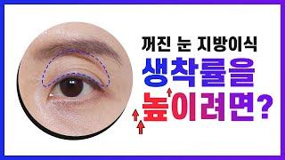 꺼진눈 지방이식의 부작용, 석회화 방지하려면? | 생착…