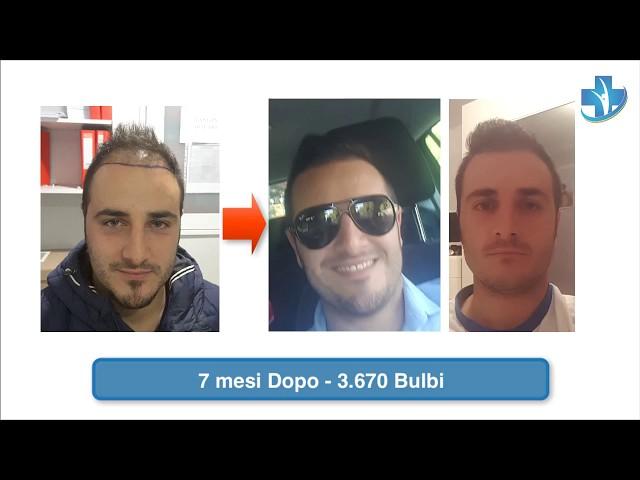 Trapianto Capelli Turchia - Prima-Dopo / 2 Sessioni  -  Dott.ssa Oyku Celen