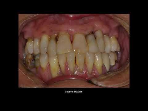 Webinar: Predictable Full Arch Dental Implants Dr. Ara Nazarian