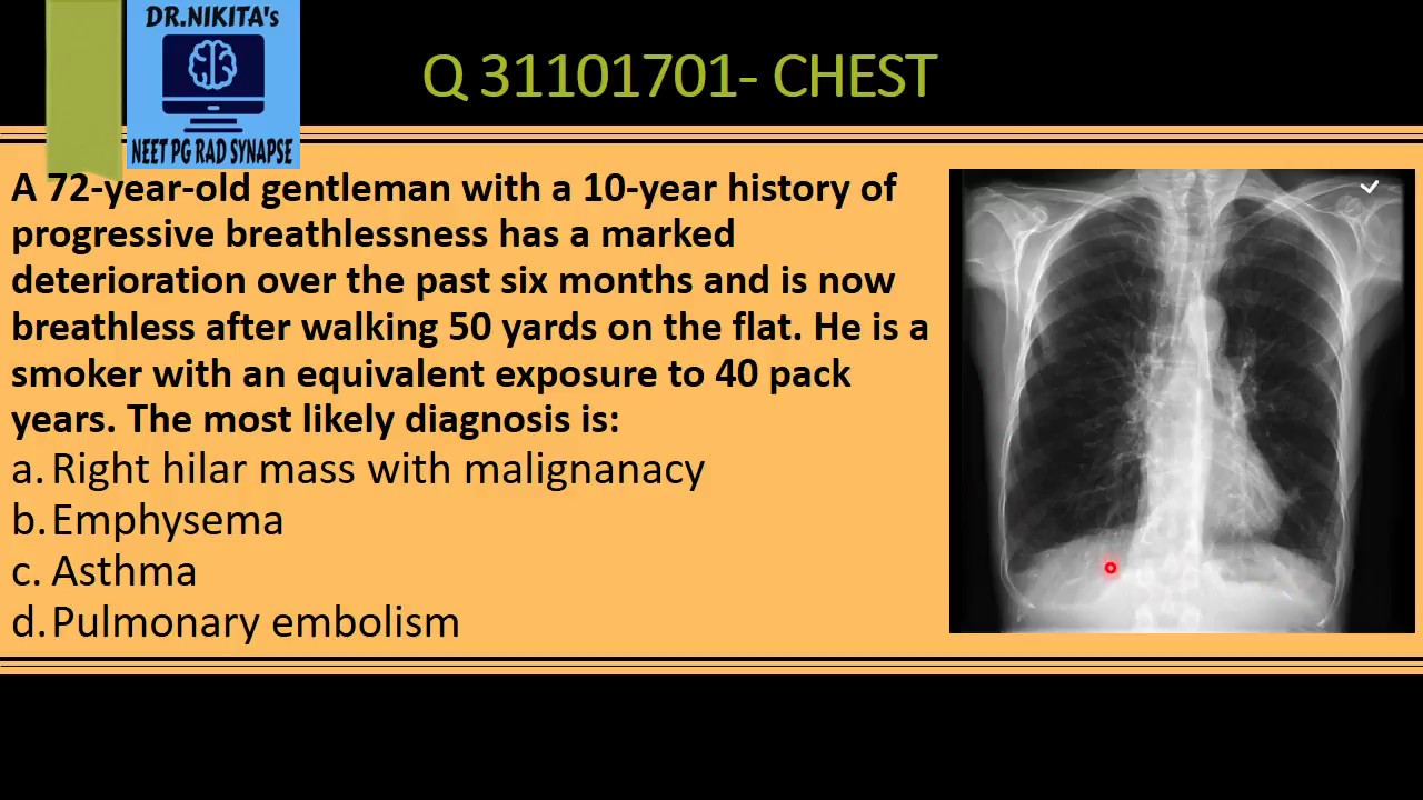 CHEST X RAY- EMPHYSEMA/ COPD SIGNS