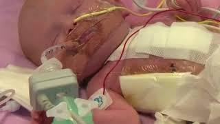 Un bébé né avec son coeur hors de la poitrine opéré avec succès en Angleterre