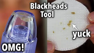 Comedo Suction Tool Review + Demo...OMG! | Blackheads Suction Tool | Does it work??