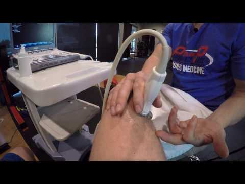 Knee Ultrasound Exam and Diagnosis