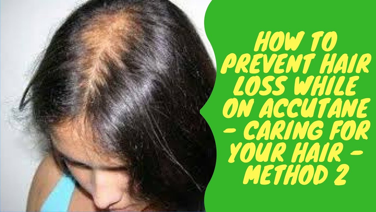 How to Prevent Hair Loss While on Accutane picture