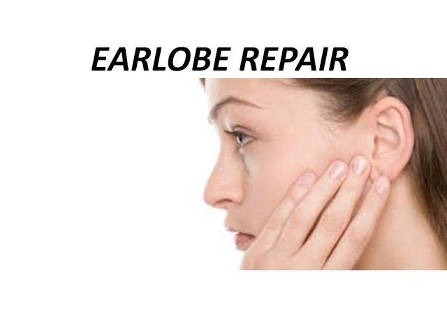 Earlobe Repair Before & After by Dr. Emily Pollard