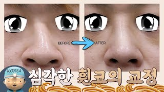 [THE LIVE #5] 심각한 휜코의 교정 - 트리플…