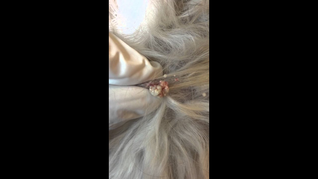 Cat Hair Follicle Cyst