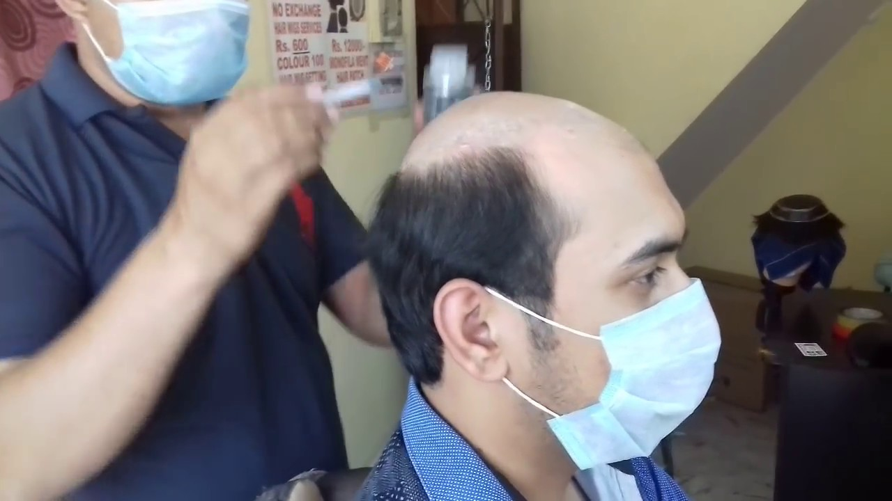9958962040 Price 5500 Hair Wigs In Delhi Hair Wigs Shop In Delhi