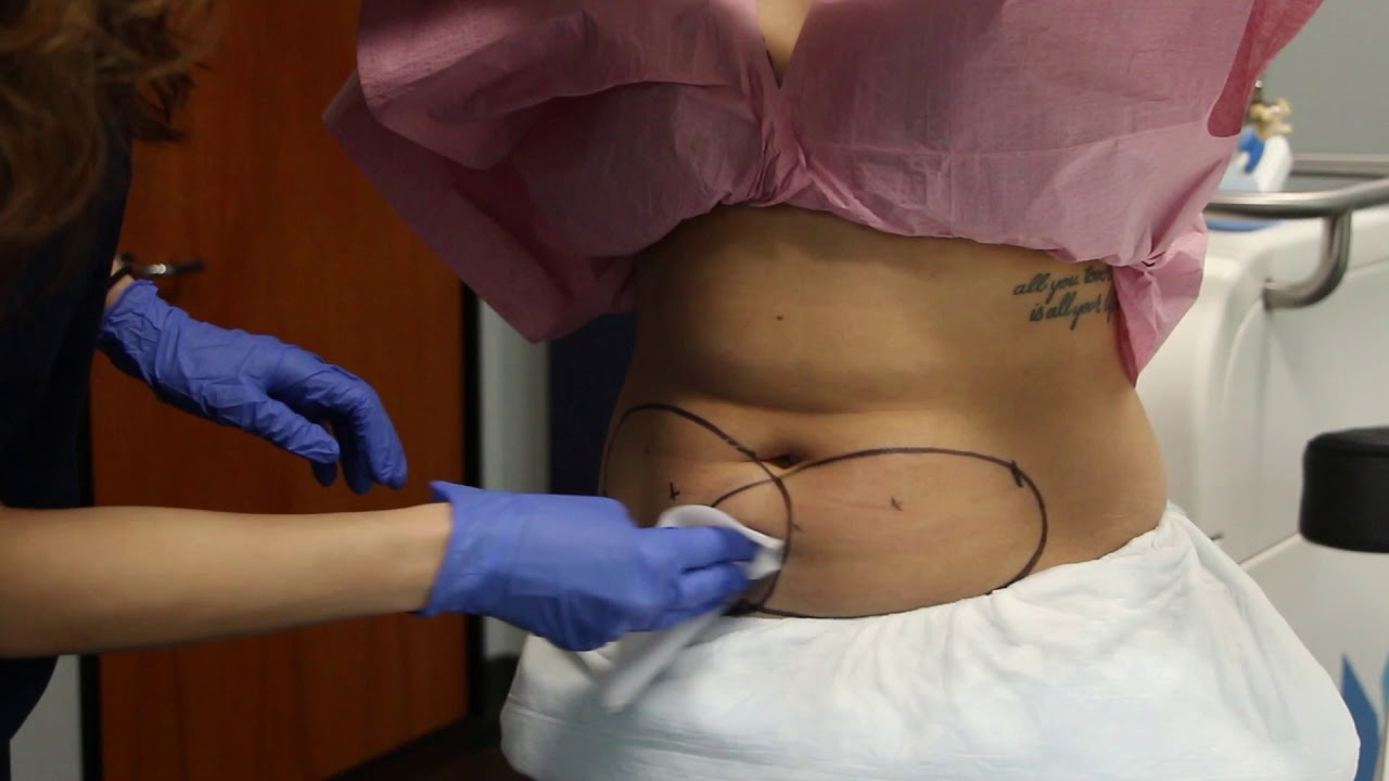 san diego dermatologists coolsculpting - 1280×720