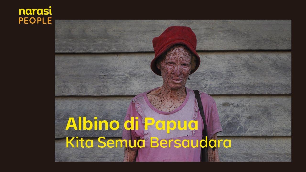 Albino di Papua - Kita Semua Bersaudara | Narasi People
