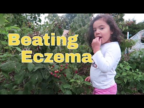 Beating Eczema with GAPS