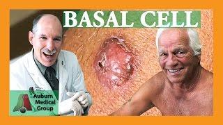 Basal Cell Biopsy | Auburn Medical Group