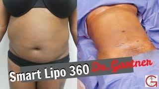 Smart Lipo 360| Liposuction| Before and After| Dr. Gartner| Gartner Plastic Surgery
