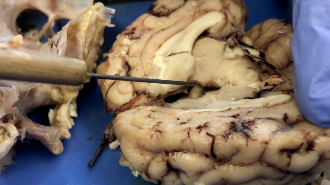 Pig Brain Dissection Lab - YouTube