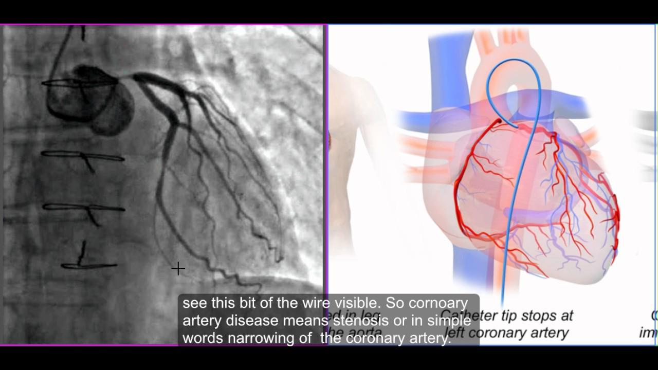 who gets coronary artery disease