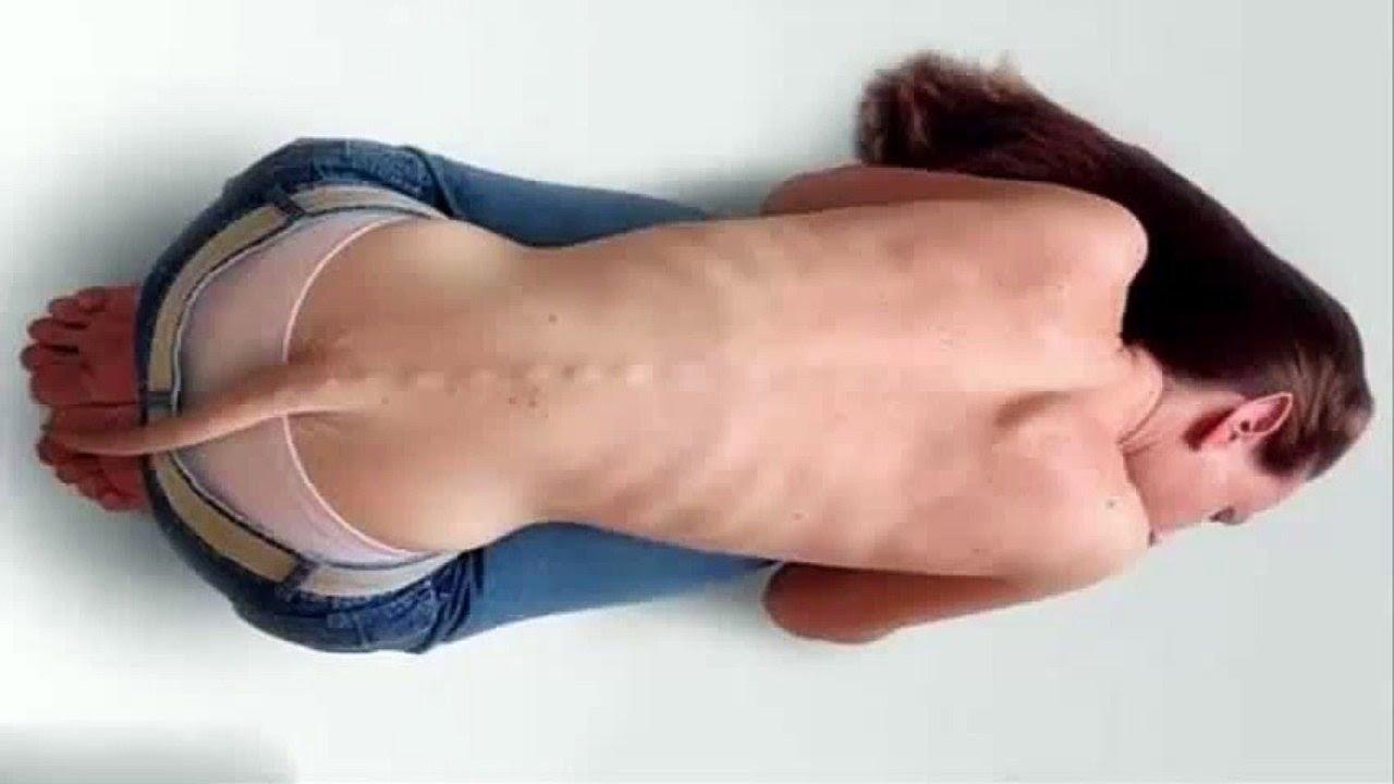 Weirdest Human Mutations - YouTube