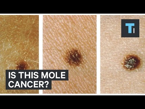 Skin Pictures Of Cancerous Moles