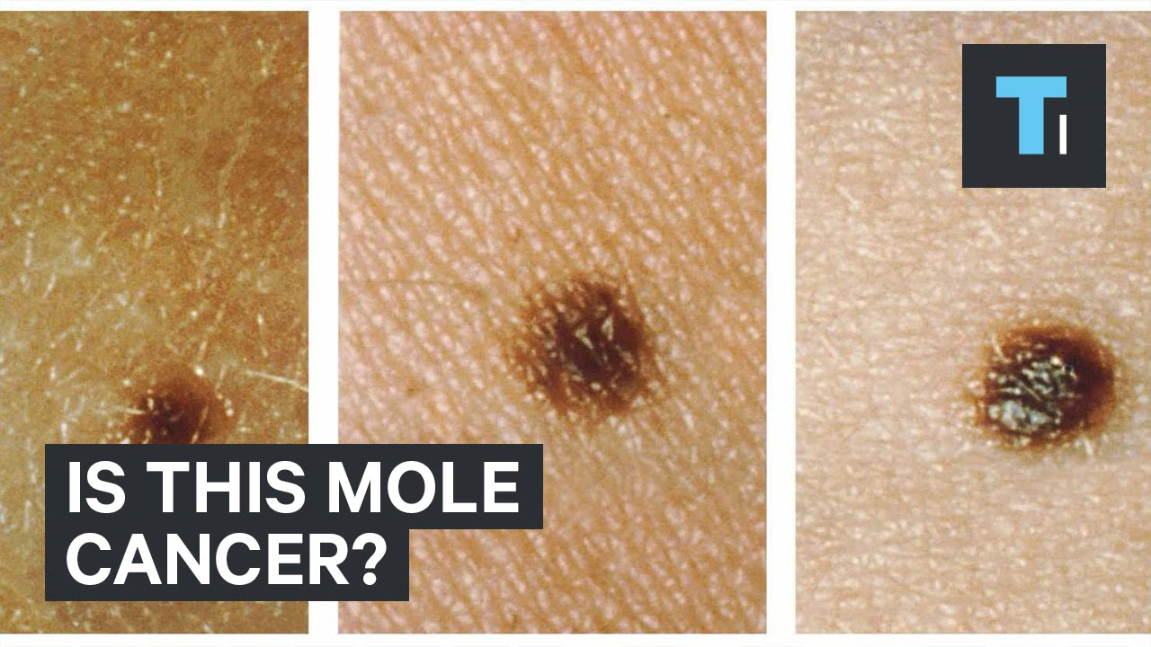 Is this mole cancer?