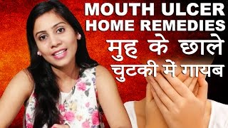 Cure Mouth Ulcer Imam Dasta Home Reme Hindi