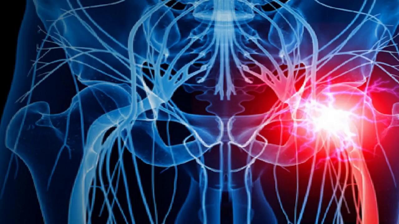 Nerv Eingeklemmt Krankschreibung