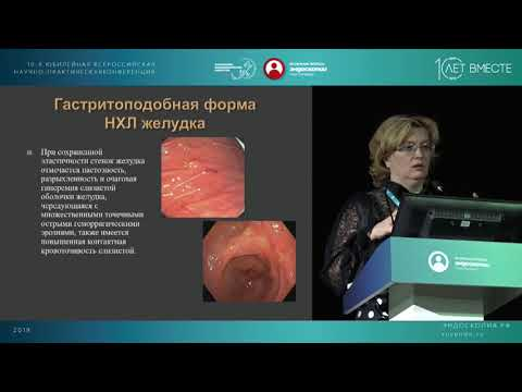 Лимфомы желудка