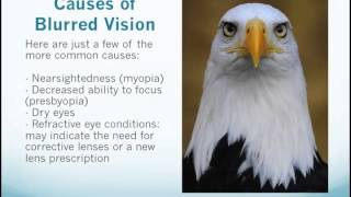 Causes and Treatments for Blurry Vision