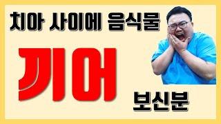 음식물 끼는 원인, 대책 총정리 by 치과의사 매직박.