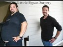 Daniel lost 177 pounds after Gastric Bypass Surgery